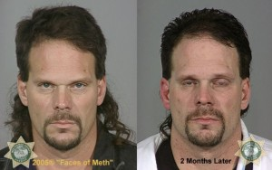Meth User Before After